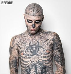 Zombie Boy, aka Rick Genest, one of the most tattooed in the world, has removed all of his tattoos for the time of a commercial for foundation makeup.