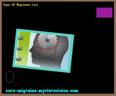 Types Of Migraines List 184154 - Cure Migraine