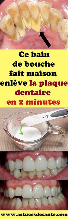 Ce bain de bouche fait maison enlève la plaque dentaire en 2 minutes#baindebouche #faitmaison #plaquedentaire #remede #recette