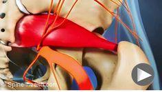 #PiriformisSyndrome video.   Wanneer verhoogde spanning in de bilspier aanwezig is kan dit veel klachten geven in de bilstreek. Hier kan de zenuw bekneld of geïrriteerd raken. Wanneer er sprake is van een verhoogde spierspanning, vaak veroorzaakt door een val, overbelasting, letsel aan de lumbale wervelkolom of herhaalde gespannenheid van de piriformis spier is Body Stress Release een doeltreffende gezondheidstechniek bij het verminderen van spierspanning.