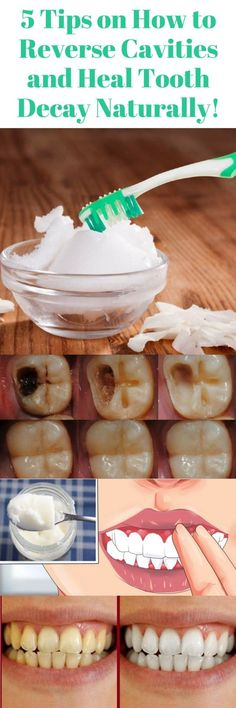 Here Are 5 Tips On How To Reverse Cavities & Heal Tooth Decay Naturally!!! - All What You Need Is Here #gumhealth