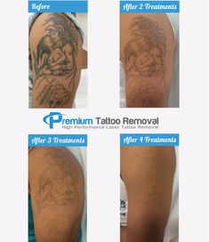 9 Fading Process Ideas Tattoo Removal Laser Tattoo Removal Tattoos
