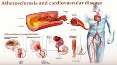 Clogged Arteries: Home Remedies, Causes, and Prevention   By Top 5.