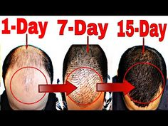 Eat These 2 Foods To Regrow Hair In 19 Days – Hair Loss Treatment – Hair Loss Cu… - Weight Loss İdeas Hair Fall Remedy, Home Remedies For Hair, Hair Loss Remedies, Hair Loss Cure, Stop Hair Loss, Prevent Hair Loss, Regrow Hair Naturally, How To Regrow Hair, Hair Fall Solution