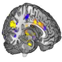 La douleur bientôt mesurée au moyen dimages cérébrales