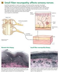 HCV New Drugs: Small fiber neuropathy: A burning problem Peripheral Nerve, Peripheral Neuropathy, Lidocaine Patch, Nerve Conduction Study, Glucose Tolerance Test, Sensory Nerves, Tricyclic Antidepressant, Nerve Fiber, Neuropathic Pain