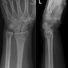 Can ulnar nerve pain cause bicep and tricep pain? Also have pain on both sides of elbow/wrist. Carpal tunnel was released on same arm 4 months ago. - Answered by top doctors on HealthTap Wrist Anatomy, Dupuytren's Contracture, Broken Wrist, Ulnar Nerve, Anatomy Images, Bone Fracture, Nuclear Medicine, Surgical Tech, Skeletal System