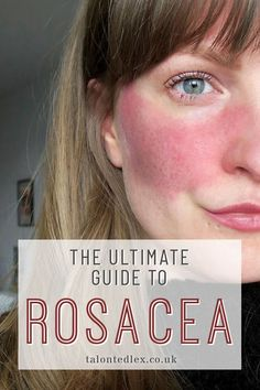 Handy Face skin care idea number it is a clever step to give essential care of one's skin. Day to night skin care tips routine of face skin care. Rosacea Remedies, Red Face Remedies, Natural Remedies For Rosacea, Natural Cures, Oily Skin, Good Skin, Natural Skin Care, Skin Care Tips, Beauty Products