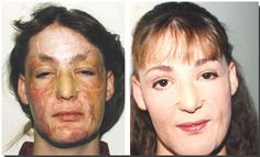 Burn Survivor Before Makeup, site says those with Scleroderma may also benefit Corrective Makeup, Makeup Tattoos, Makeup Techniques, Camouflage, Burns, Benefit, How To Look Better, Stage, Cancer
