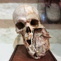 Skull with a mandibular tumor at the Bleuland cabinet in the University Museum Utrecht, Netherlands. Photo credit: © @marvinjarodd ROCKO'S MODERN LIFE