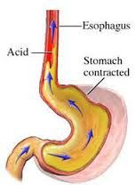 Acid Reflux (GERD).  For some people, eating a heavy, spicy or fatty meal can produce the unmistakable signs of acid reflux. Symptoms can vary from a burning pain in the chest to a sour taste in the mouth as stomach acid and/or regurgitated food flows upward through the esophagus into the oral cavity. Additionally they may experience difficult or painful swallowing, sore throat, a dry, rough voice, or feeling of a lump in the throat that cannot be cleared away.