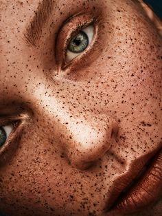 full of freckles