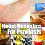 11 Home Remedies For Psoriasis