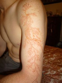 Lichtenberg Figures: The Fractal Patterns of Lightning Strike Scars.~  When being struck by lightning sometimes, the electrical discharge can leave a tattoo-like marking or scar known as a Lichtenberg figure. The patterns created are known to be examples of fractals. Lichtenberg figures are branching electric discharges. They are named after the German physicist Georg Christoph Lichtenberg, who originally discovered  them.
