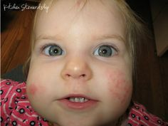 Does eczema plague your family? Check out our list of what works and what doesn't to soothe scratchy skin.