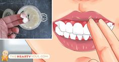 Republished with permission from thenaturesfarmacy.com. Gingivitis is the initial stage of gum disease, which is usually caused when bacteria builds up in your gums.It is easier to treat at an early stage while the bone and the connective tissues are not yet infected. When left untreated, gingivitis can cause severe irritation, swelling and redness of... View Article