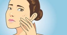 How To Remove Pimple Marks In 2 Days Naturally? Remove Pimples Overnight, How To Get Rid Of Pimples, Lighten Dark Spots, Dark Spots On Face, Pimple Marks, Acne Marks, Skin Whitening Soap, Remover Manchas, Dark