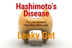 Hashimoto's Disease, Hashimoto's, Hashimoto, hashimotos, hashimoto's disease symptoms, autoimmune, thyroid, hypothyroidism, underactive thyroid, autoimmune diseases, autoimmune conditions, leaky gut, autoimmunity, immune system, auto-immune conditions, Grave's Disease, antibodies, stress, natural health