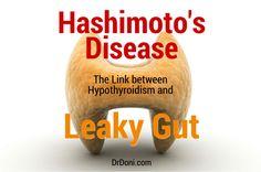 Hashimoto's Disease, Hashimoto's, Hashimoto, hashimotos, hashimoto's disease symptoms, autoimmune, thyroid, hypothyroidism, underactive thyroid, autoimmune diseases, autoimmune conditions, leaky gut, autoimmunity, immune system, auto-immune conditions, Grave's Disease, antibodies, stress, natural health