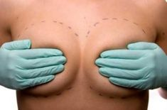 Breast Augmentation I say if you want it do it. If its for you. If its for someone else then hell no. I'm just learning again after having my son to love my body and it's hard but I know I can do it without anything crazy