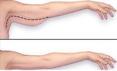 Comment Maigrir et perdre le gras de bras en quelques semaines