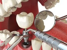 Are dental implants painful. Dental insurance that covers implants. Cost of full mouth dental implants. All on 4 dental implants cost. Types of dental implants. Dental Implant Procedure, Teeth Implants, Dental Surgery, Top Dental, Dental Care, Dental Hygienist, Smile Dental, Affordable Dental Implants, Tooth Replacement