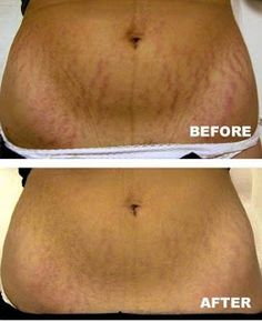 Homemade Stretch Mark Cream: his is a homemade stretch mark cream recipe that really works