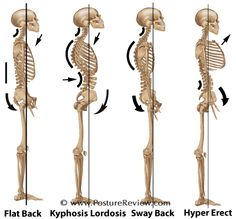 Four Common Posture Types... unfortunately all too common.