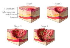 prevention of pressure sores nice guidelines