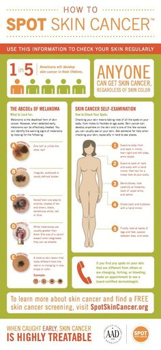 Learn how to Spot Skin Cancer - it's the most common cancer in the United States but it's preventable and highly treatable when spotted early