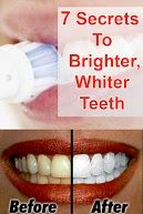 7 Secrets to Brighter, Whiter Teeth