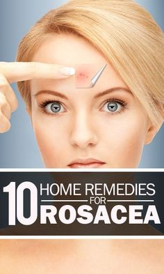 10 home remedies for rosacea that are very effective.