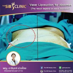 Vaser Liposuction Vaser Liposuction for abdomen can reduce fat. The result depend on each individual.