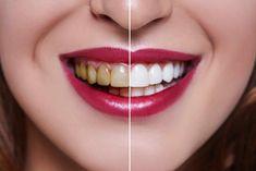 کامپوزیت دندان چیست ؟ کامپوزیت دندان در حقیقت ماده نسبتا محکمی است که به منظور اصلاح رنگ و یا شکل بر روی دندان ها قرار می گیرد. کامپوزیت دندان دارای ماندگاری طولانی مدتی است و قابلیت ترمیم مجدد را دارد.روکش کامپوزیت دندان انواع مختلفی دارد که در مقاله های قبل به آنها اشاره شد. زیبایی دندانها از جمله مواردی است که باعث افزایش اعتماد به نفس در افراد می شود. استفاده از کامپوزیت به دو روش صورت میگیرد روش اول ونیر یا روکش کامپوزیت است و روش دوم پر کردن دندان می باشد . Dental Health, Dental Care, Dental Group, Oral Health, Zahn Bleaching, Dental Veneers, Stained Teeth, Family Dentistry, Natural Remedies