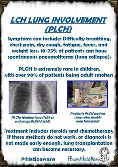 """•PLCH (LCH in the Lungs)• Histiocytosis in the lungs primarily affects adult smokers. (95%) (Merck Manuals says """"the disease occurs almost exclusively in whites 20 to 40 yr of age who smoke."""") Three percent are non-smoking adults and the remaining 2% are children. According to the Histiocytosis Association, it is estimated that 63% of adults with LCH have lung involvement only. Symptoms of lung involvement include chest pain, shortness of breath,collapsed lung, dry cough, weight loss, f"""
