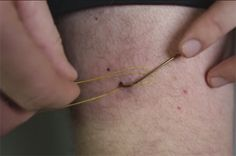 Video Pro Tip: How to Remove a Fish Hook from Your Skin - Orvis News