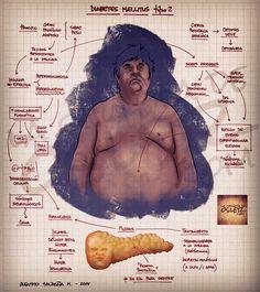 Fuente:lachuletadeosler.com Datos a tener en cuenta para esta entrada:  Diagnóstico de diabetes mellitus tipo 2 Glucemia en ayunas 126mg/dL x 2 Glucemia al azar 200mg/dL Glucemia de 200mg/dL, 2 horas después de sobrecarga oral con 75g de glucosa oral Hemoglobina glicada mayor al 6.5% La fisiopatogenia se basa en el sobrepeso que asocia importante resistencia tisular a la insulina, es decir, el páncreas produce insulina pero no funciona. Gradualmente la glicemia aumenta. La glucosa ejerce…
