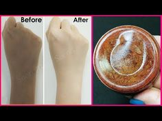 Magical Homemade Skin Whitening Soap | Removes Suntan, Dark spots, Acne-Pimples - YouTube