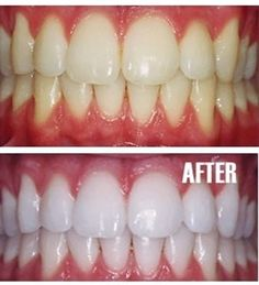 Put a tiny bit of toothpaste into a small cup, mix in one teaspoon baking soda plus one teaspoon of hydrogen peroxide, and half a teaspoon water. Thoroughly mix then brush your teeth for two minutes.  - Click image to find more hair & beauty Pinterest pins