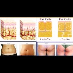 Ultrasound Liposuction is a new, non-surgical fat removal procedure. Unlike tummy tuck or liposuction, in ultrasonic cavitation there are no knives, no anesthesia and no surgery. Ultrasonic cavitation is similar to mesotherapy or lipodissolve in that it is a treatment for cellulite called localized adiposity.   Www.intimatewaxingandspa.com