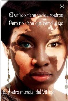 El vitiligo facial es muy frecuente y muy notable