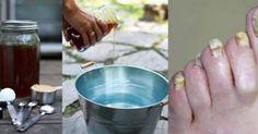 Το χαμηλό pH του σώματός σου επιτρέπει στους μύκητες να αναπτύσσονται. Το μηλόξυδο είναι όξινο και η σόδα μαγε...