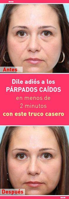 Dile adiós a los PÁRPADOS CAÍDOS en menos de 2 minutos con este truco casero #parpado #caido #remediosnaturales