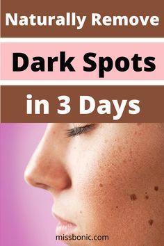 Dark Spots On Face, Dark Spots On Skin, Acne Spots, Dark Marks On Face, Pimples Remedies, Wrinkle Remedies, Dark Spot Remover For Face, Beauty Tips For Glowing Skin, Beauty Skin