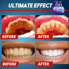 Intensive Stain Removal Toothpaste – BOGO Off – Ends Today - Sante Dentaire Instant White Teeth, Best Whitening Toothpaste, Natural Toothpaste, Natural Stain Remover, Get Whiter Teeth, Stained Teeth, Teeth Care, Skin Care, Makeup Ideas