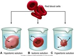 There are three types of osmosis hypotonic, hypertonic, and isotonic. These are the effects of different solutions on blood cells. This picture is of the osmotic pressures on blood cells.
