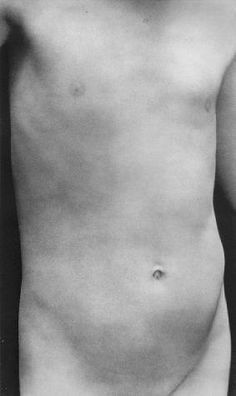 Edward Weston, Torso of Neil, 1925