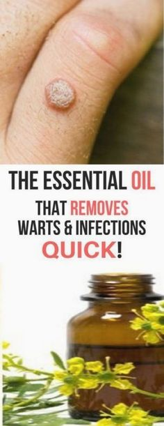 Powerful Essential Oil That Help To Get Rid From Warts & Infections Quickly! There are more than 100 types of HPV, the virus that causes warts. Natural Health Tips, Natural Health Remedies, Natural Healing, Herbal Remedies, Natural Foods, Cold Remedies, Natural Cures, Bloating Remedies, Holistic Healing