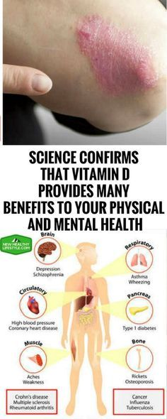 Science Confirms That Vitamin D Provides Many Benefits To Your Physical And Mental Health #ScienceConfirmsThatVitaminDProvidesManyBenefitsToYourPhysicalAndMentalHealth