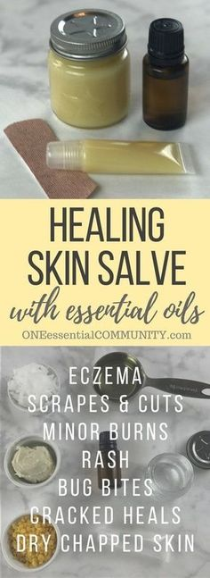 DIY all-purpose essential oil healing skin salve recipe: eczema, chapped skin, cracked heals, minor cuts, bug bites, bee stings, rash, burns, and more.